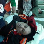 On 49th  Friday of Great March of Return and Breaking Siege, Israeli Forces Wound 83 Civilians, including 23 Children, Woman, 3 Paramedics, and Journalist